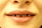 Assurance dentaire - Orthodontie